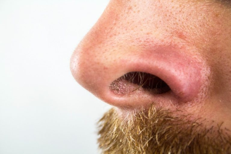Teeth in Nose is more common in men as compared to women